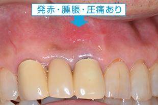 歯根端切除術(外科的歯内療法)